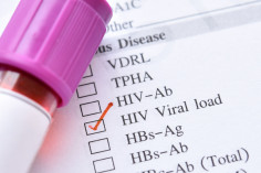 Undetectable viral load. What is it?