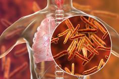 Tuberculosis and HIV