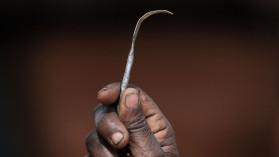 Female genital mutilation(FGM)