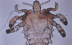 PUBIC LICE AND SCABIES